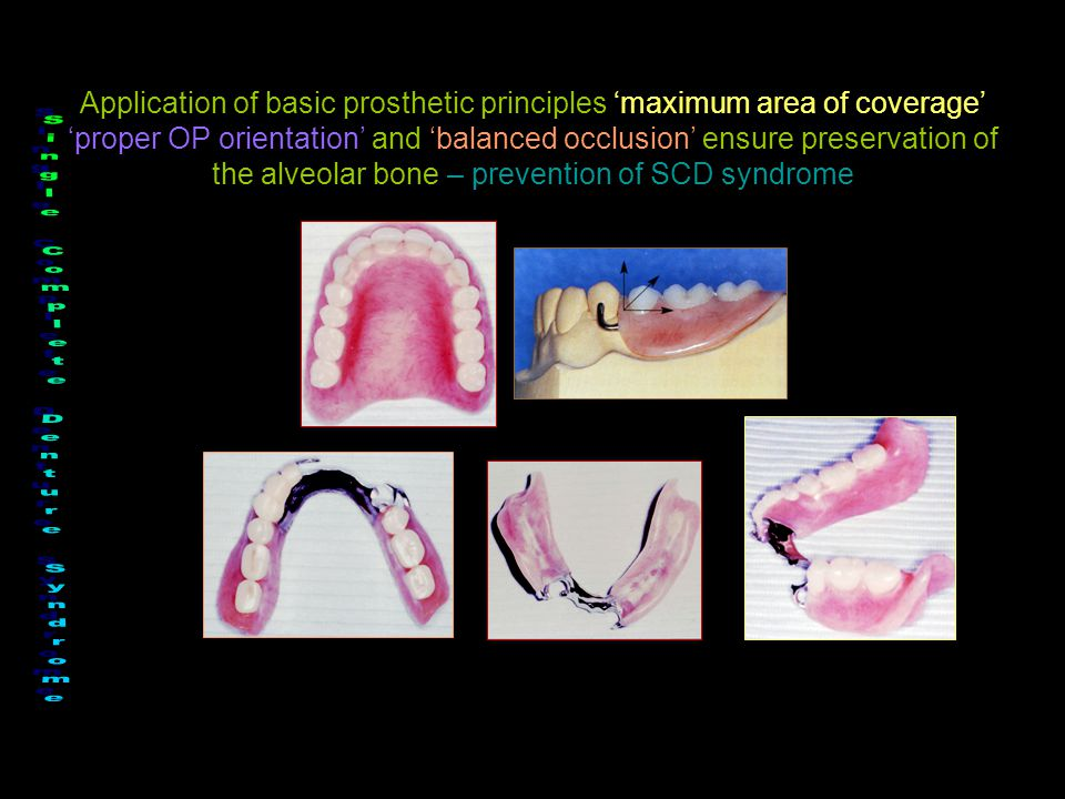 Application of basic prosthetic principles 'maximum area of coverage' 'proper OP orientation' and 'balanced occlusion' ensure preservation of the alve