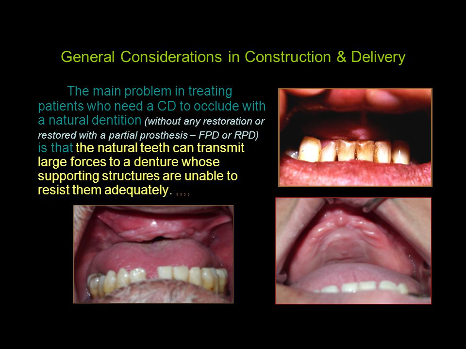 General Considerations in Construction & Delivery The main problem in treating patients who need a CD to occlude with a natural dentition (without any