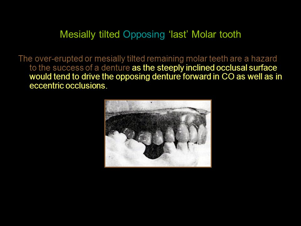 Mesially tilted Opposing 'last' Molar tooth The over-erupted or mesially tilted remaining molar teeth are a hazard to the success of a denture as the