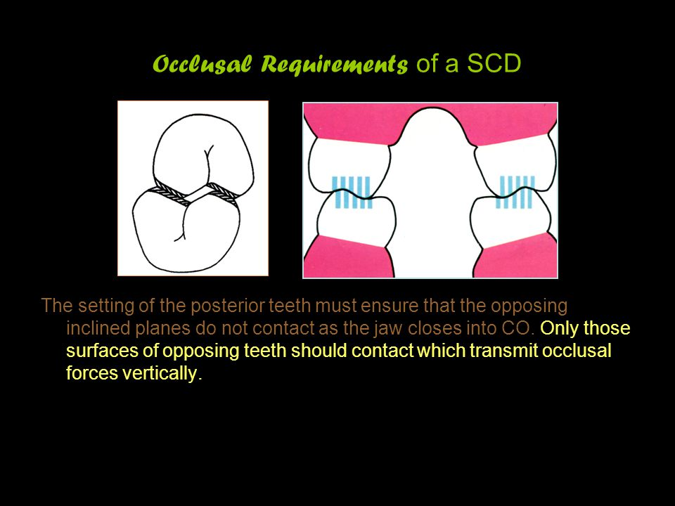 Occlusal Requirements of a SCD The setting of the posterior teeth must ensure that the opposing inclined planes do not contact as the jaw closes into