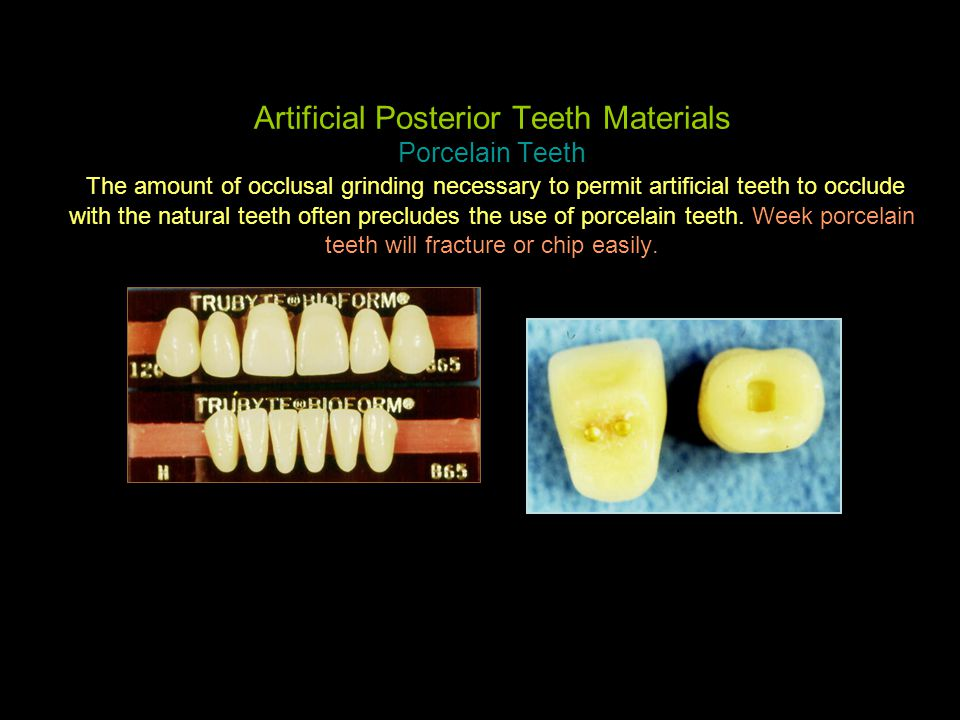 Artificial Posterior Teeth Materials Porcelain Teeth The amount of occlusal grinding necessary to permit artificial teeth to occlude with the natural