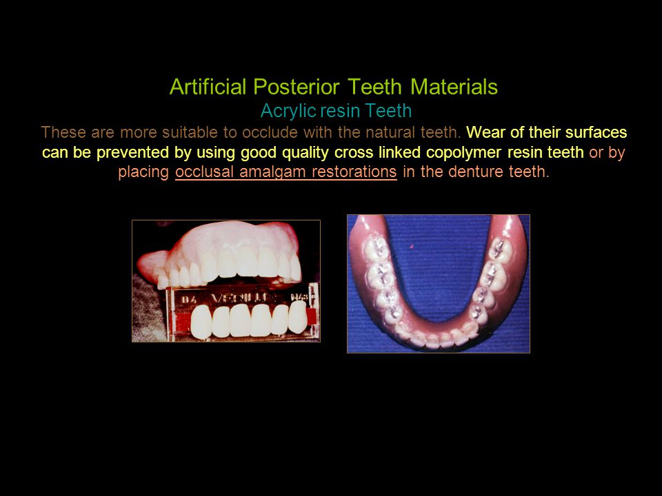 Artificial Posterior Teeth Materials Acrylic resin Teeth These are more suitable to occlude with the natural teeth. Wear of their surfaces can be prev