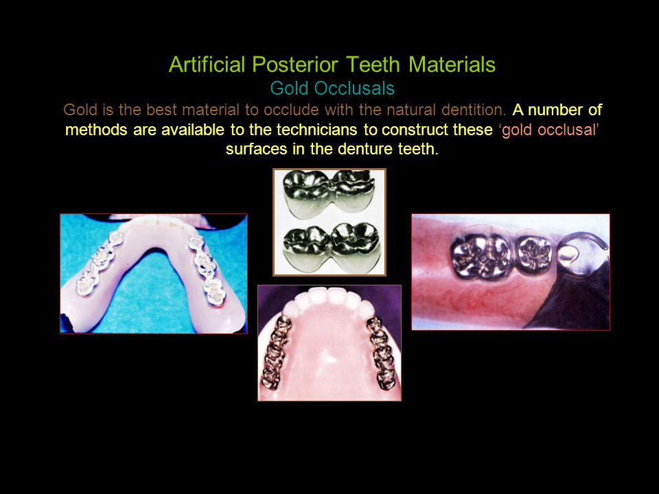 Artificial Posterior Teeth Materials Gold Occlusals Gold is the best material to occlude with the natural dentition. A number of methods are available