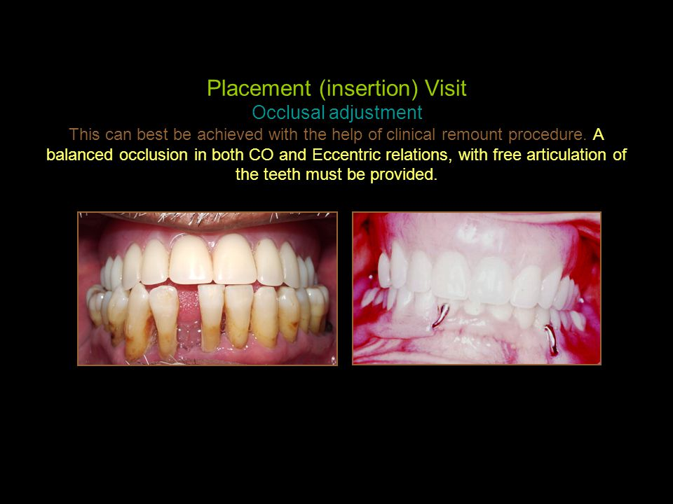 Placement (insertion) Visit Occlusal adjustment This can best be achieved with the help of clinical remount procedure. A balanced occlusion in both CO