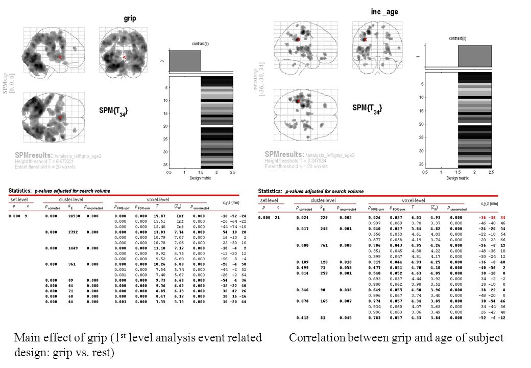 Main effect of grip (1 st level analysis event related Correlation between grip and age of subject design: grip vs.
