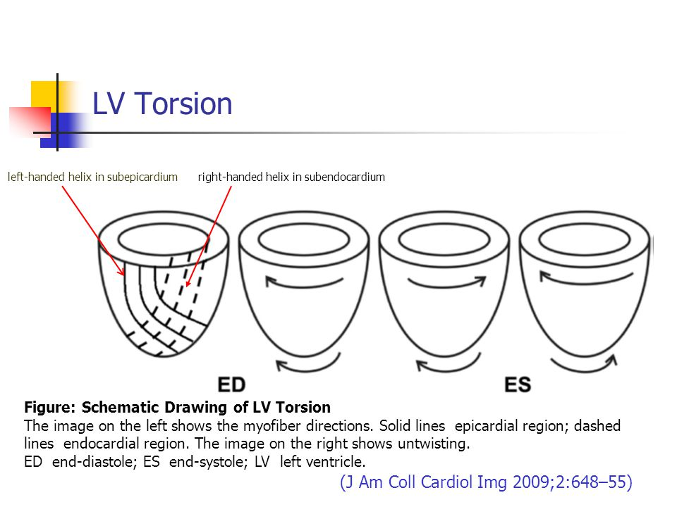 LV Torsion Figure: Schematic Drawing of LV Torsion The image on the left shows the myofiber directions. Solid lines epicardial region; dashed lines en