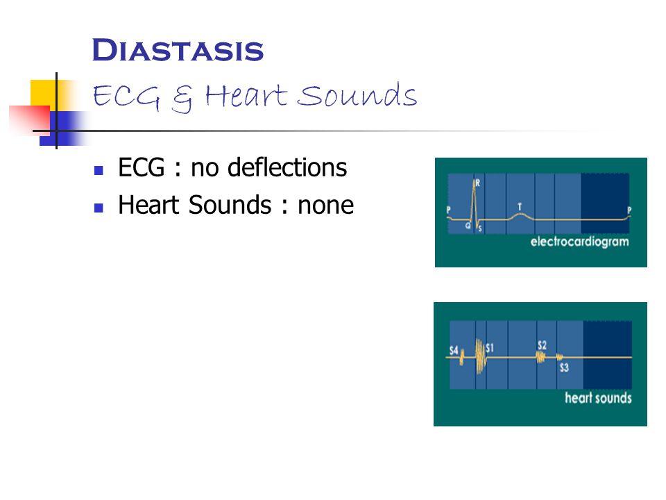 Diastasis ECG & Heart Sounds ECG : no deflections Heart Sounds : none