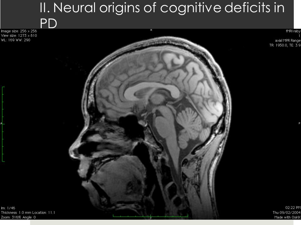 II. Neural origins of cognitive deficits in PD