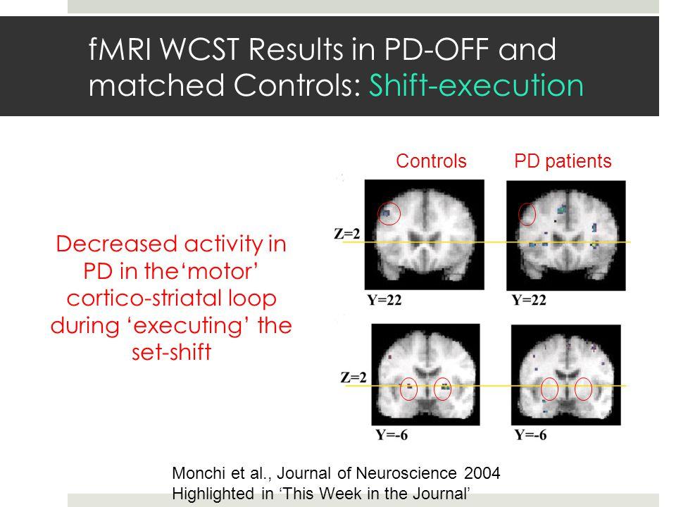 fMRI WCST Results in PD-OFF and matched Controls: Shift-execution ControlsPD patients Decreased activity in PD in the'motor' cortico-striatal loop dur