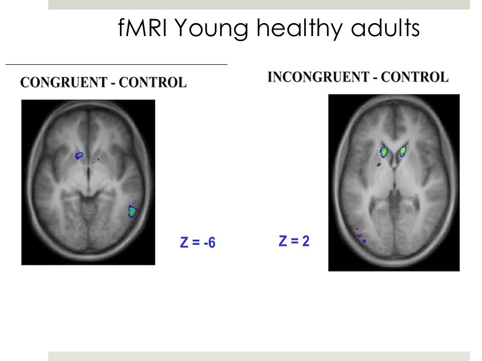 fMRI Young healthy adults Ventral striatumDorsal striatum McDonald et al., 2011, Brain