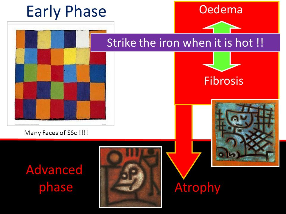 Early Phase Strike the iron when it is hot !! Advanced phase Atrophy Fibrosis Oedema Many Faces of SSc !!!!