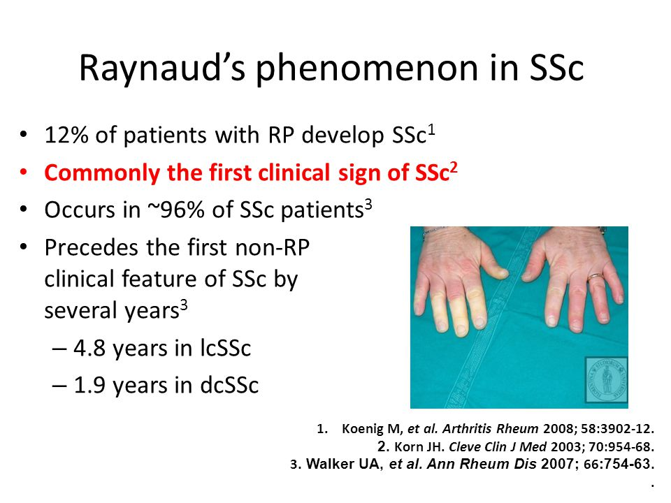 Raynaud's phenomenon in SSc 12% of patients with RP develop SSc 1 Commonly the first clinical sign of SSc 2 Occurs in ~96% of SSc patients 3 Precedes