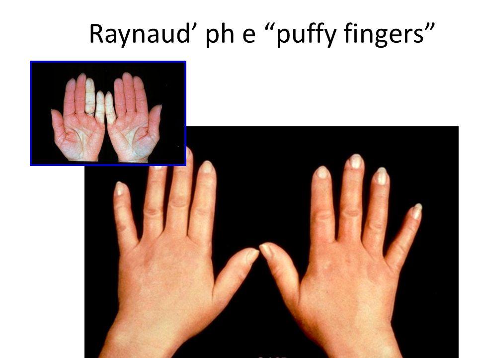 "Raynaud' ph e ""puffy fingers"""
