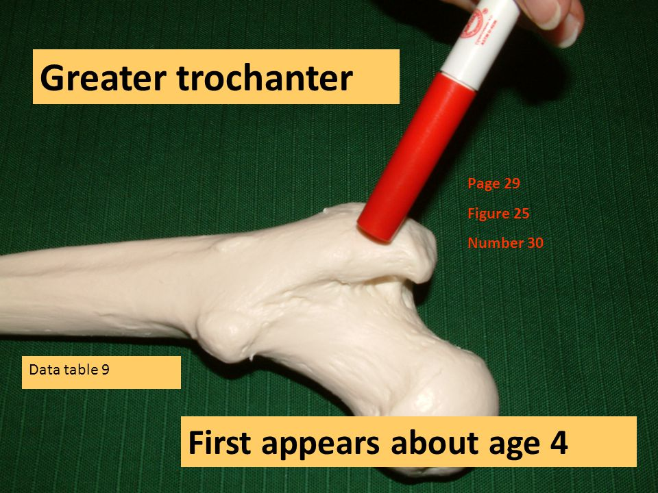 Greater trochanter First appears about age 4 Page 29 Figure 25 Number 30 Data table 9
