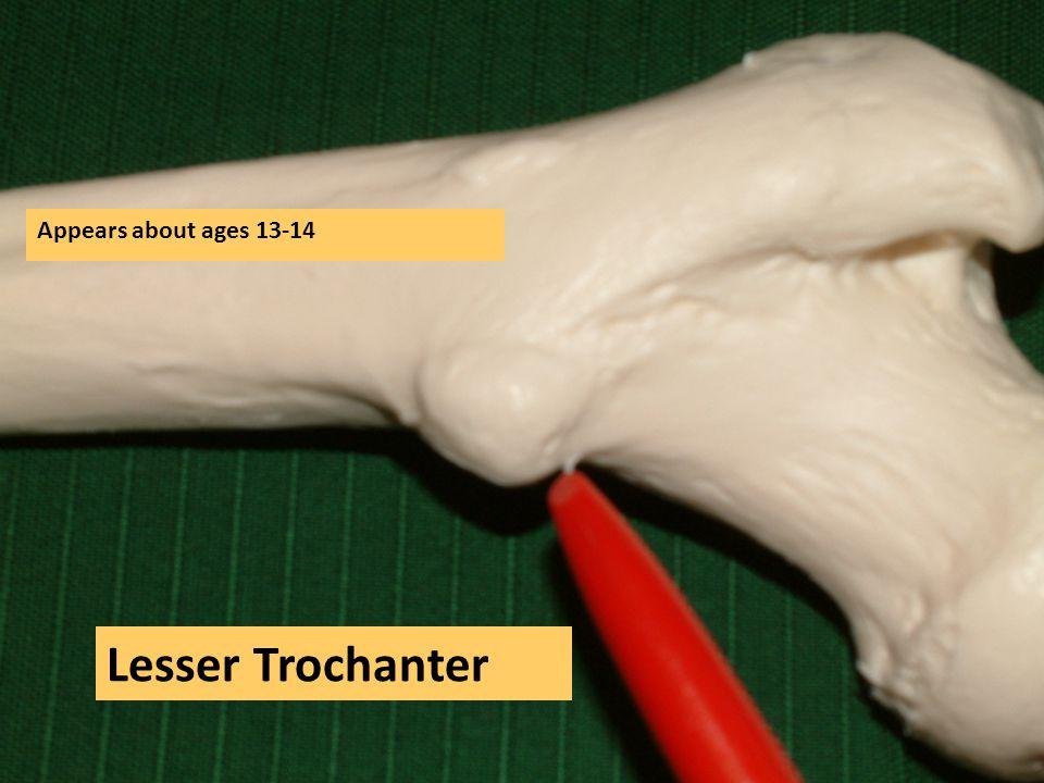 Lesser Trochanter Appears about ages 13-14