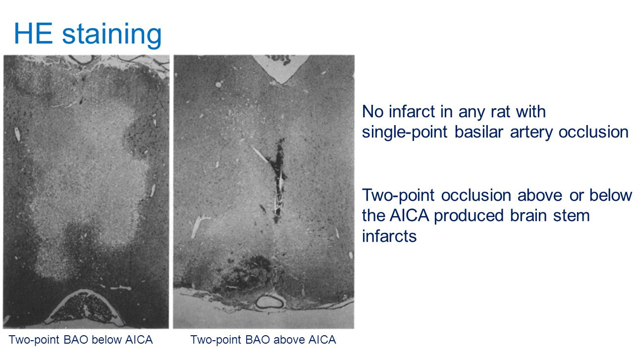 HE staining Two-point BAO below AICATwo-point BAO above AICA No infarct in any rat with single-point basilar artery occlusion Two-point occlusion abov