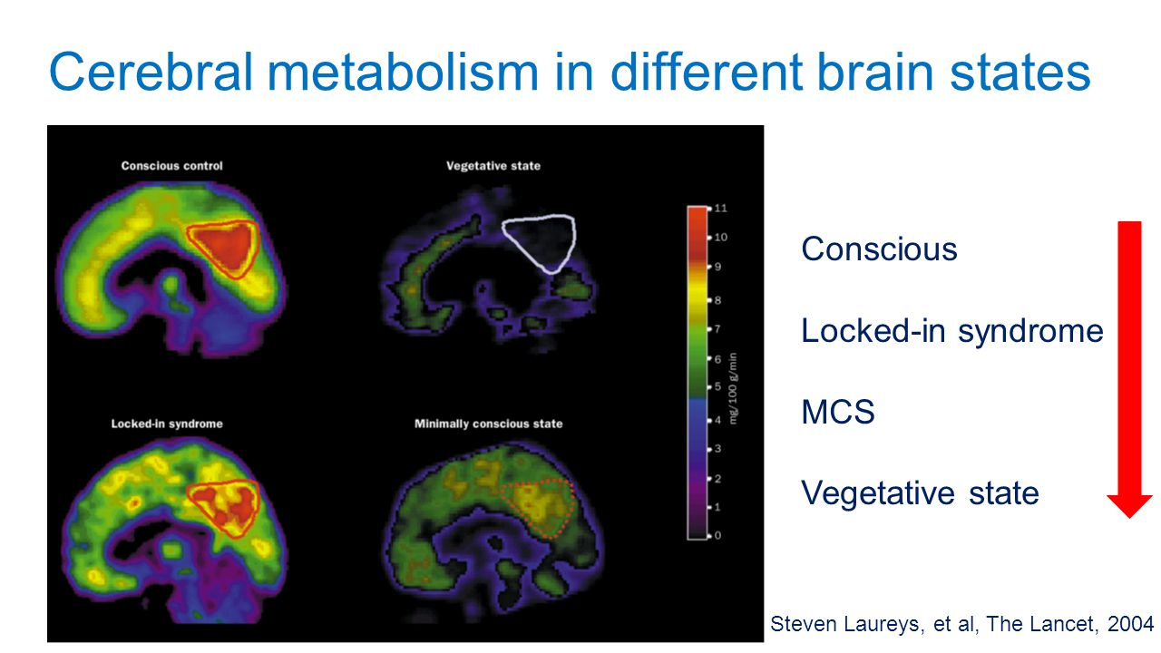 Important points of the study 1.Challenge widely accepted view of comatose model (thalamus) 2.