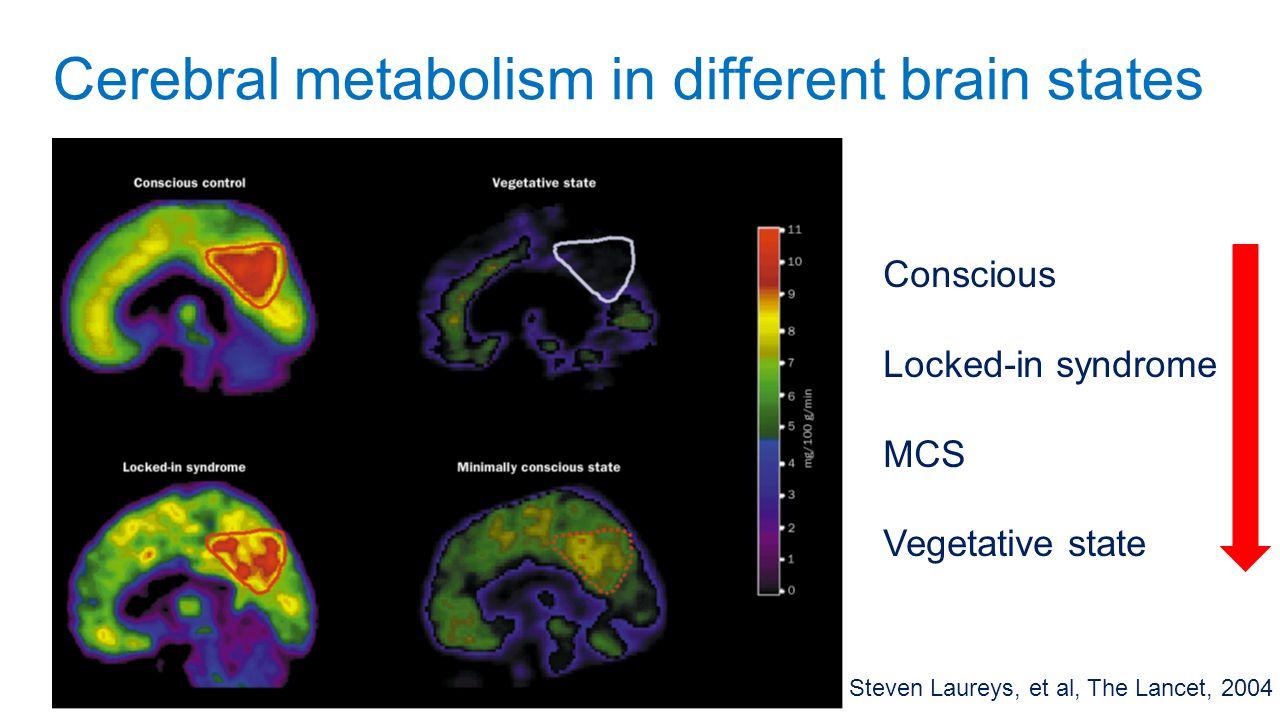 Cerebral metabolism in different brain states Steven Laureys, et al, The Lancet, 2004 Conscious Locked-in syndrome MCS Vegetative state