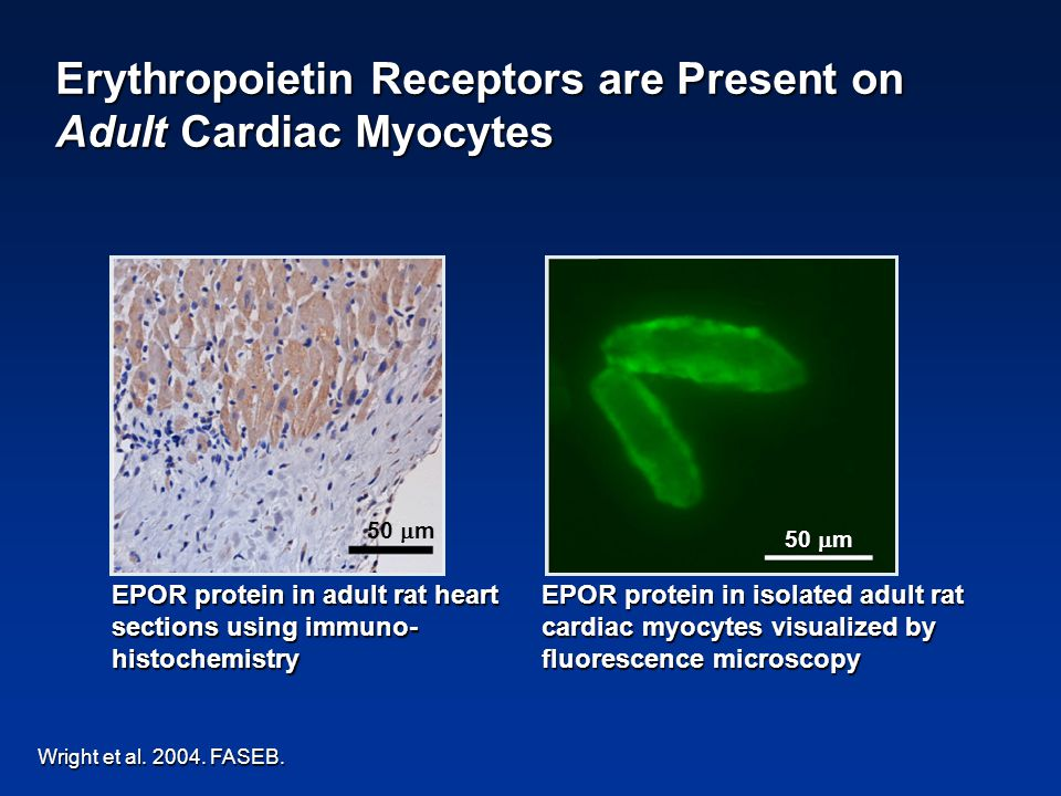Wright et al. 2004. FASEB. EPOR protein in adult rat heart sections using immuno- histochemistry 50  m EPOR protein in isolated adult rat cardiac myo