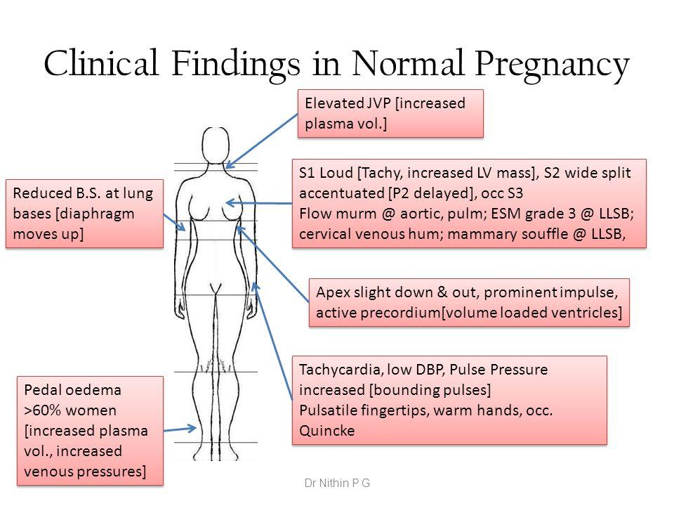 Clinical Findings in Normal Pregnancy Elevated JVP [increased plasma vol.] Tachycardia, low DBP, Pulse Pressure increased [bounding pulses] Pulsatile
