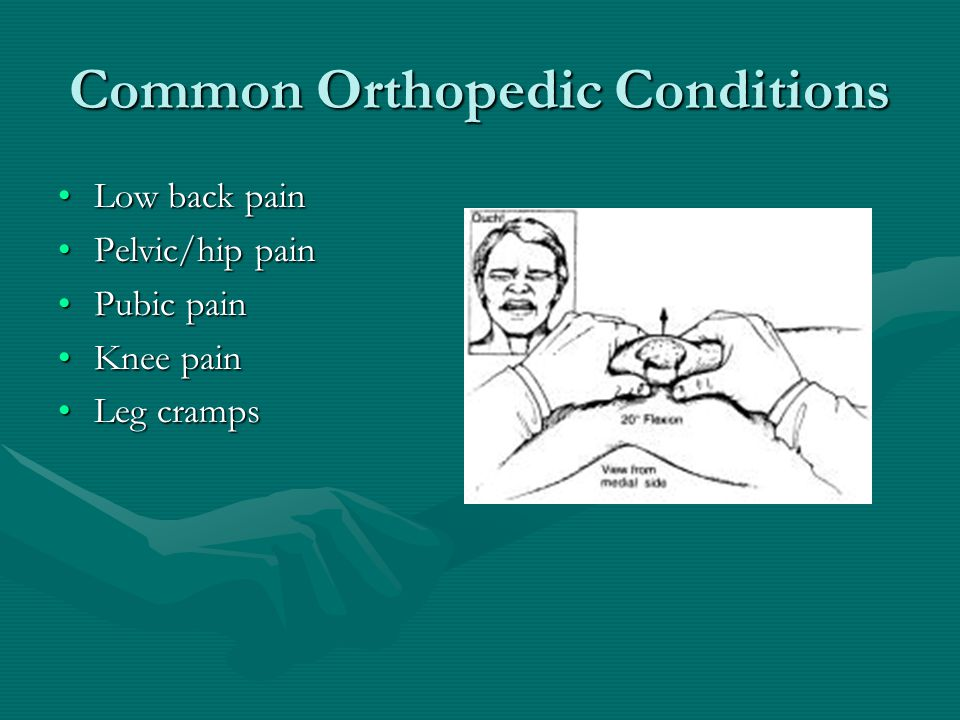 Common Orthopedic Conditions Low back painLow back pain Pelvic/hip painPelvic/hip pain Pubic painPubic pain Knee painKnee pain Leg crampsLeg cramps