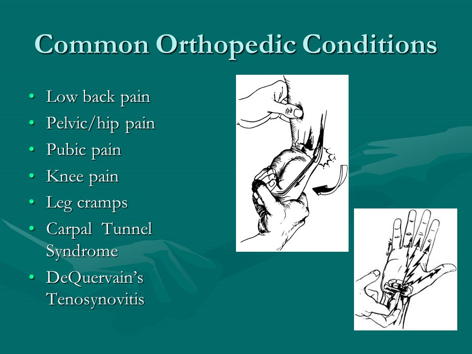 Common Orthopedic Conditions Low back painLow back pain Pelvic/hip painPelvic/hip pain Pubic painPubic pain Knee painKnee pain Leg crampsLeg cramps Carpal Tunnel SyndromeCarpal Tunnel Syndrome DeQuervain's TenosynovitisDeQuervain's Tenosynovitis