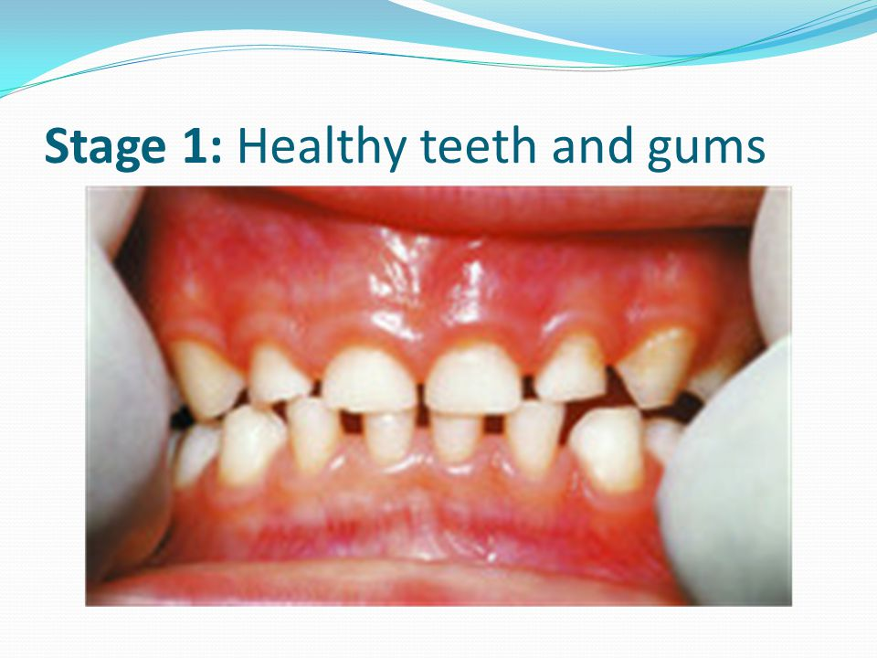 Stage 1: Healthy teeth and gums
