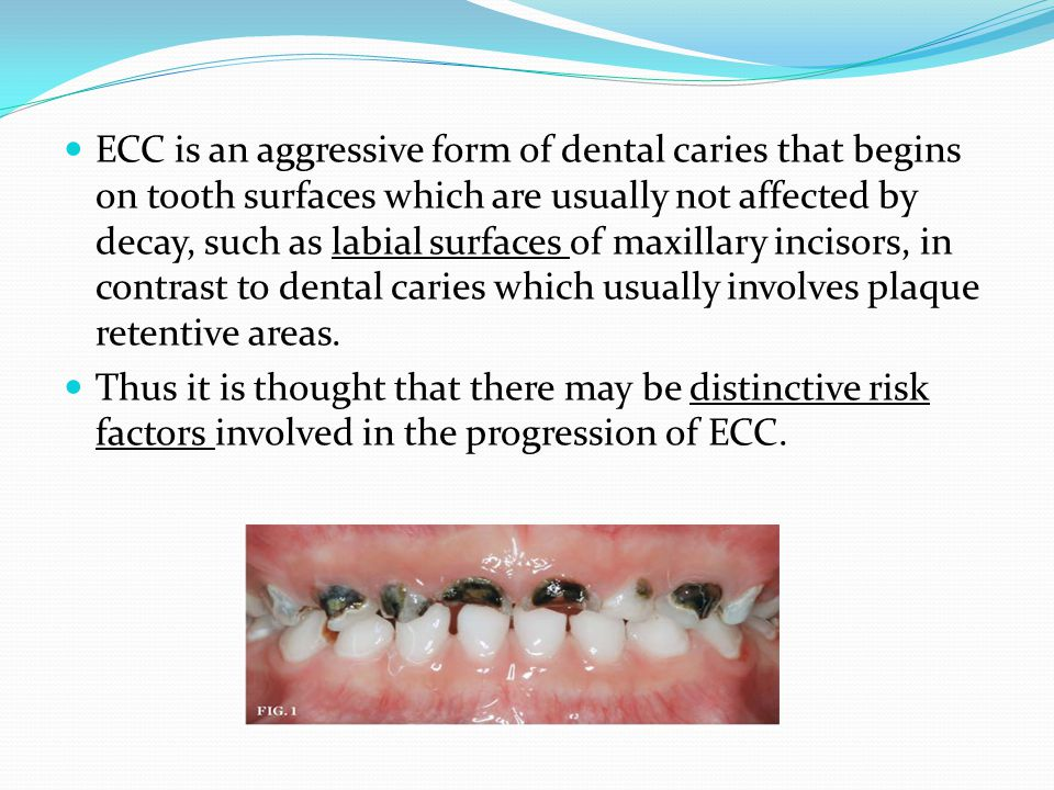 ECC is an aggressive form of dental caries that begins on tooth surfaces which are usually not affected by decay, such as labial surfaces of maxillary