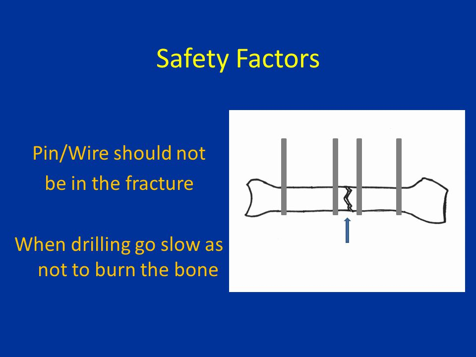 Safety Factors Pin/Wire should not be in the fracture When drilling go slow as not to burn the bone