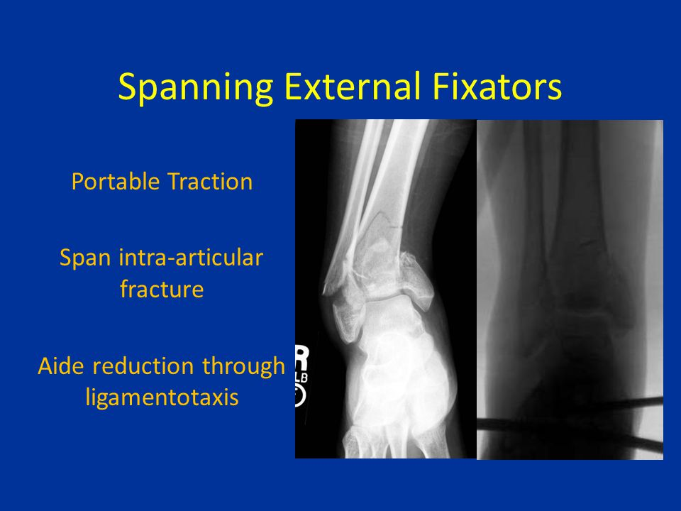 Spanning External Fixators Portable Traction Span intra-articular fracture Aide reduction through ligamentotaxis