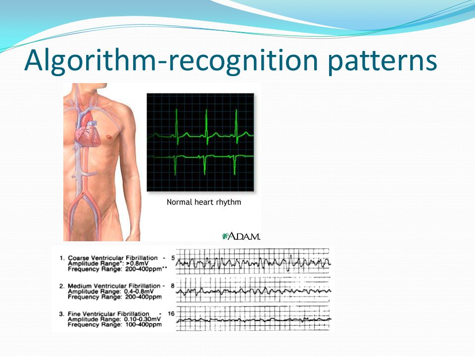 Algorithm-recognition patterns