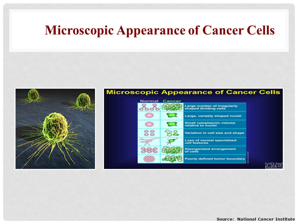 Microscopic Appearance of Cancer Cells Source: National Cancer Institute