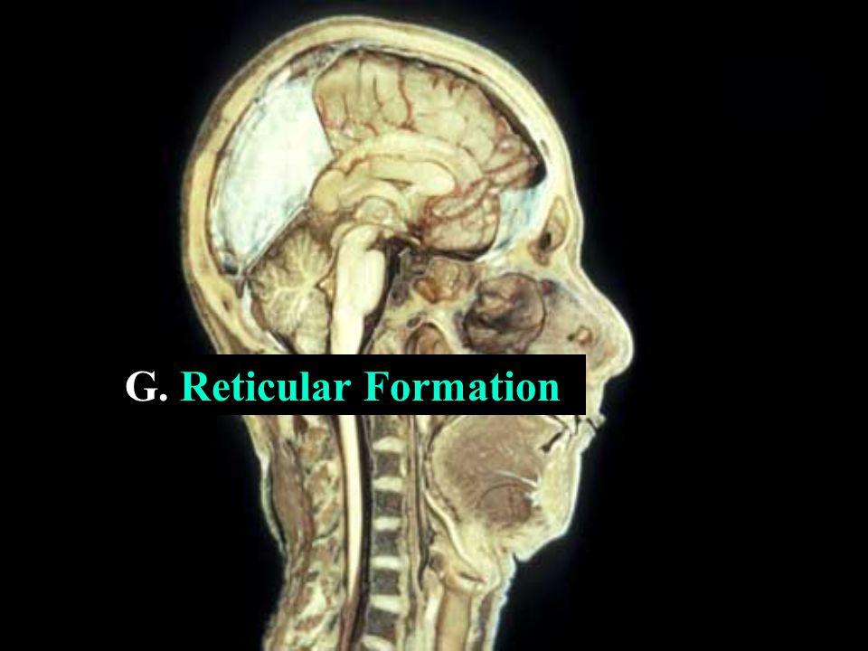 G. Reticular Formation