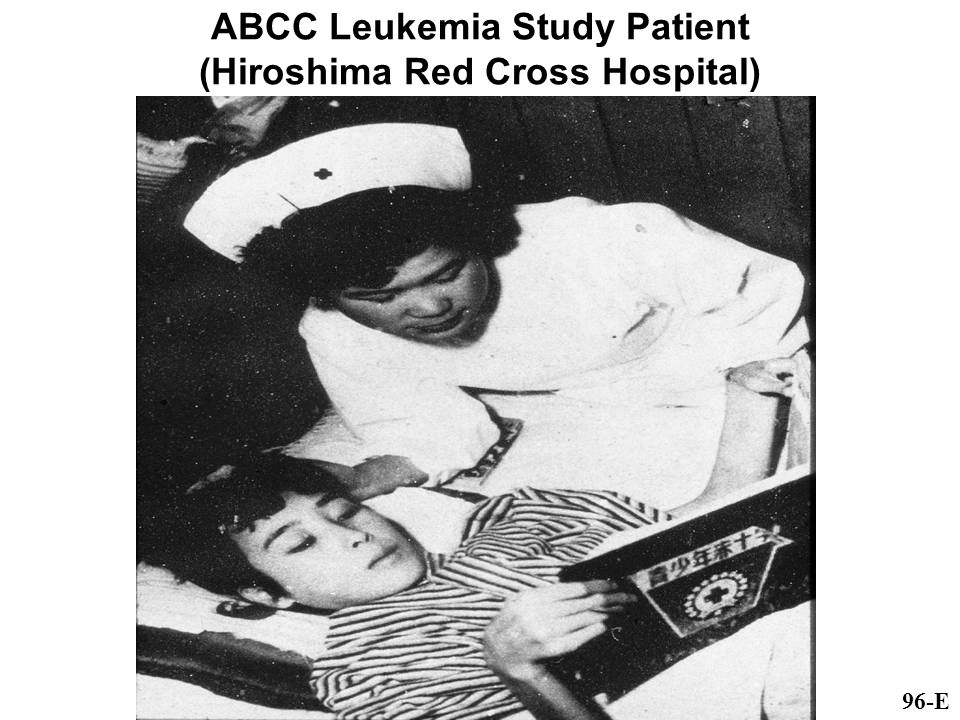 ABCC Leukemia Study Patient (Hiroshima Red Cross Hospital) 96-E