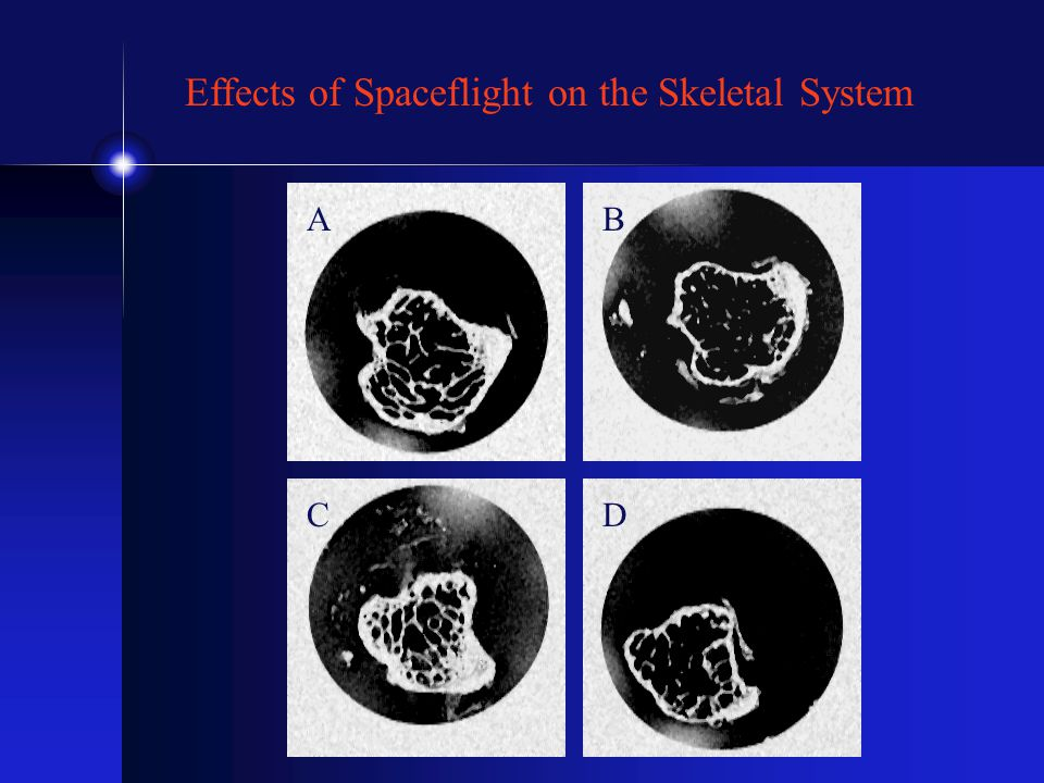 AB CD Effects of Spaceflight on the Skeletal System