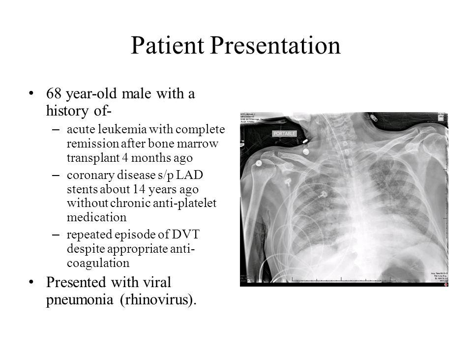 Veno-arterial ECMO Despite optimal medical management, the patient quickly progressed into ARDS.
