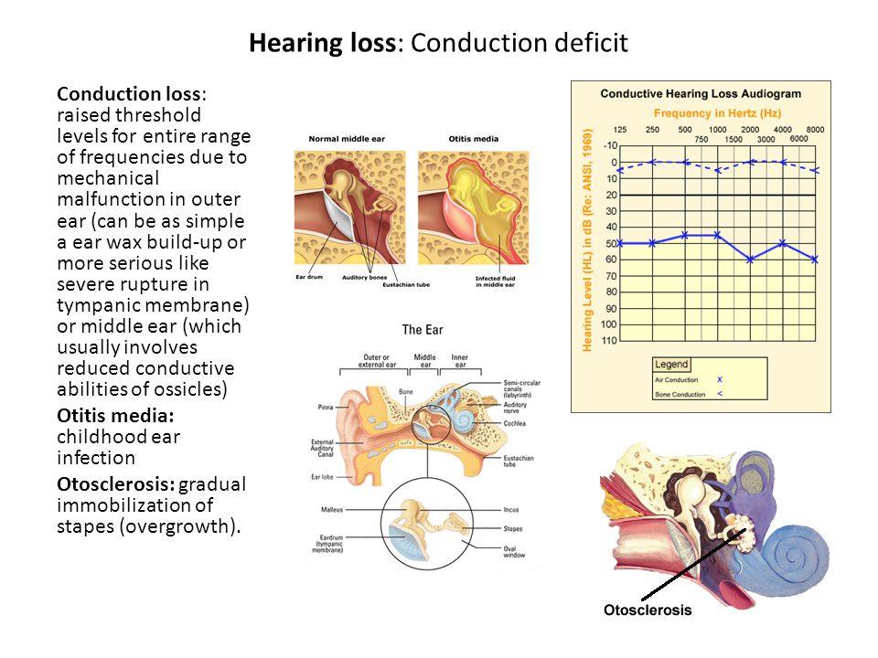 Hearing loss: Sensory-neural Affects response on Basilar membrane.