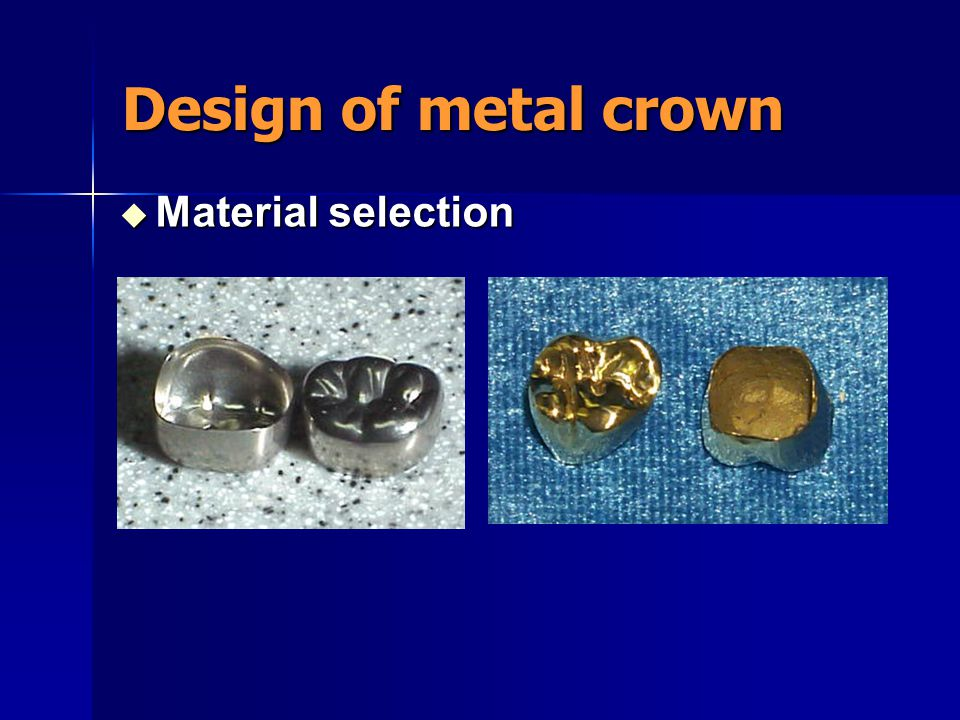 Design of metal crown  The position of gingival margin of the crown  To reduce the occlusal force
