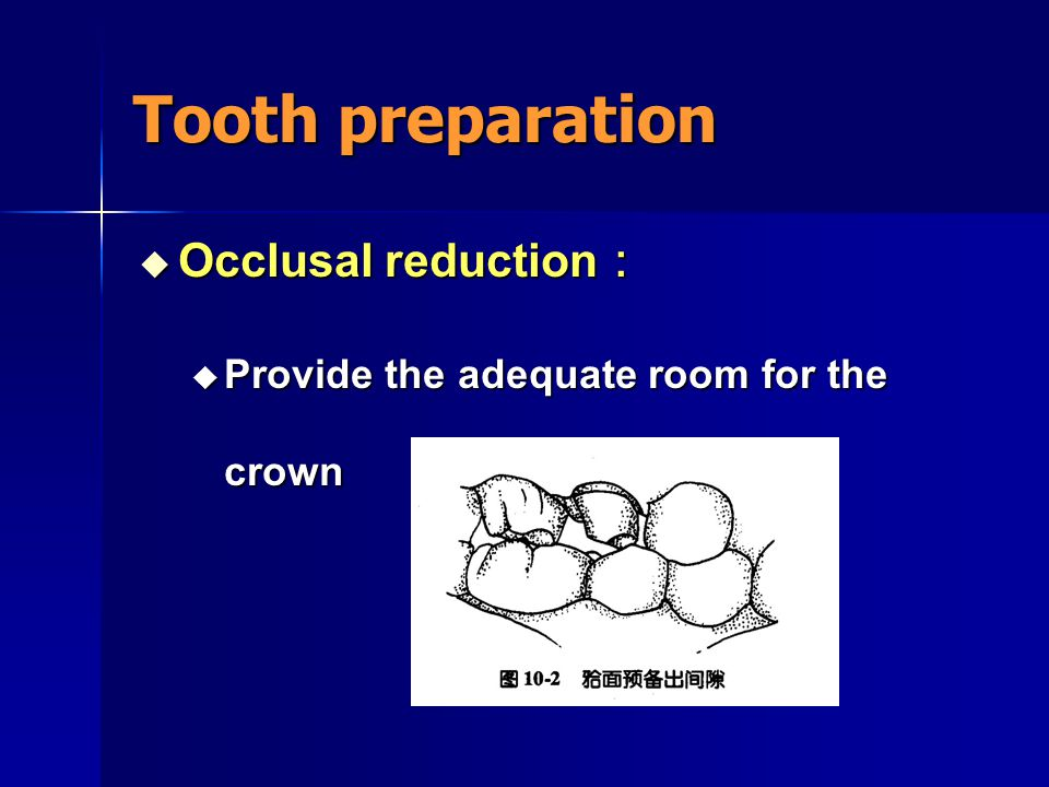 Tooth preparation  Occlusal surface :  Amount of tooth reduction : 1.0mm
