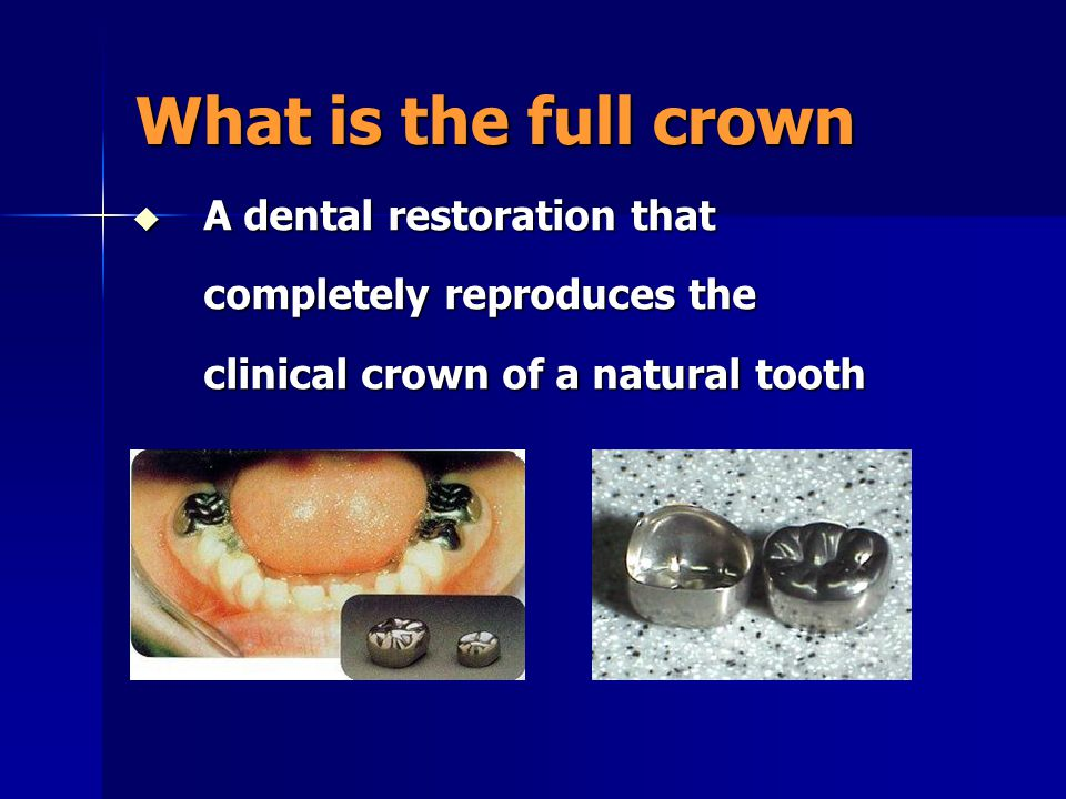 What is the full crown  A dental restoration that completely reproduces the clinical crown of a natural tooth