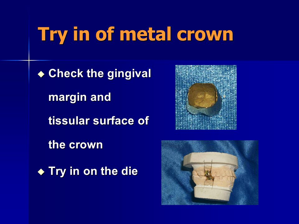 Try in of metal crown  Placement onto the abutment  Occlusal adjustment