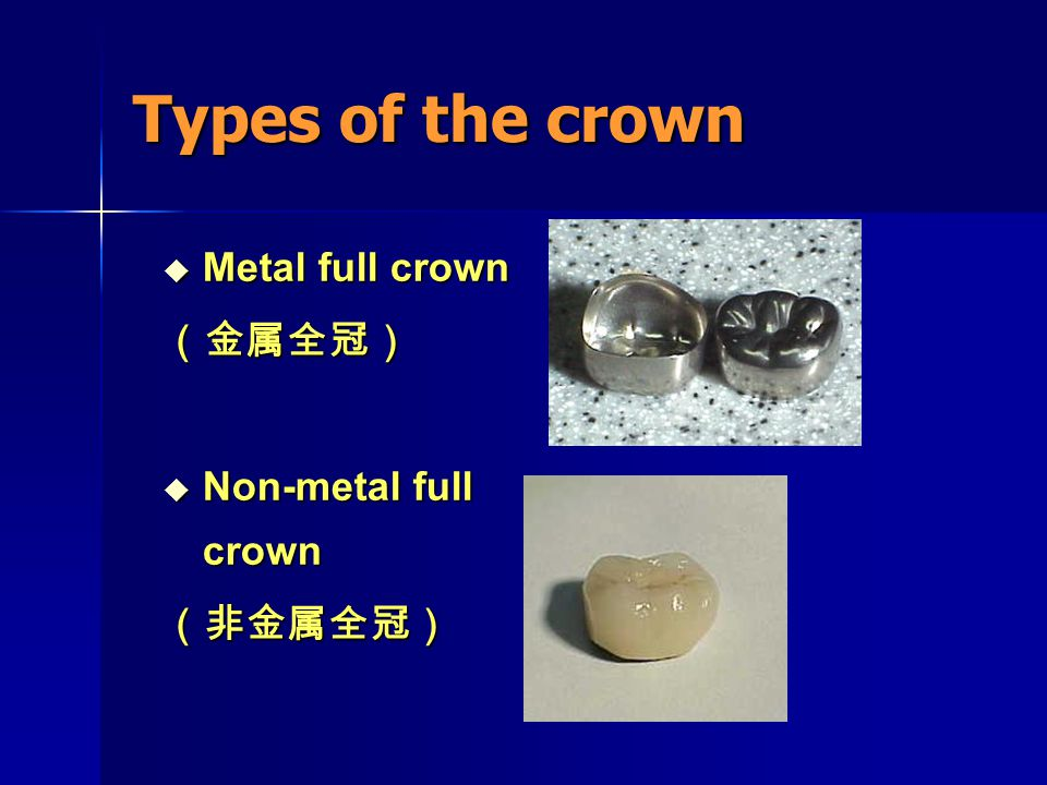 Types of the crown  Combinatorial crown (金属 — 非金属混合全冠)