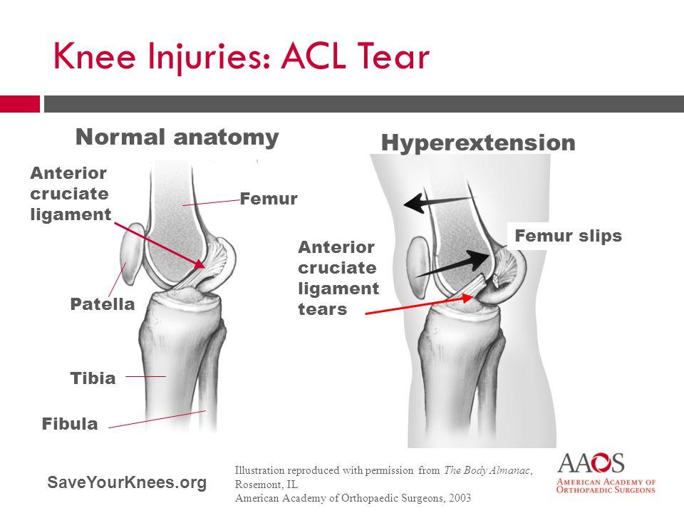 SaveYourKnees.org Knee Injuries: ACL Tear Normal anatomy Hyperextension Femur Anterior cruciate ligament Anterior cruciate ligament tears Patella Tibi