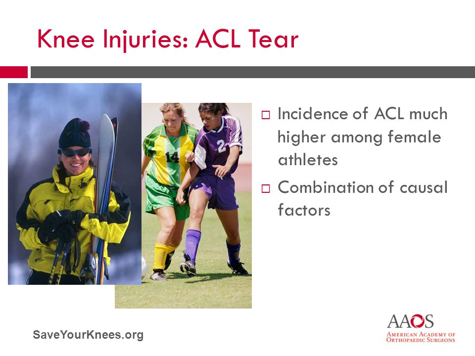 SaveYourKnees.org Knee Injuries: ACL Tear  Incidence of ACL much higher among female athletes  Combination of causal factors