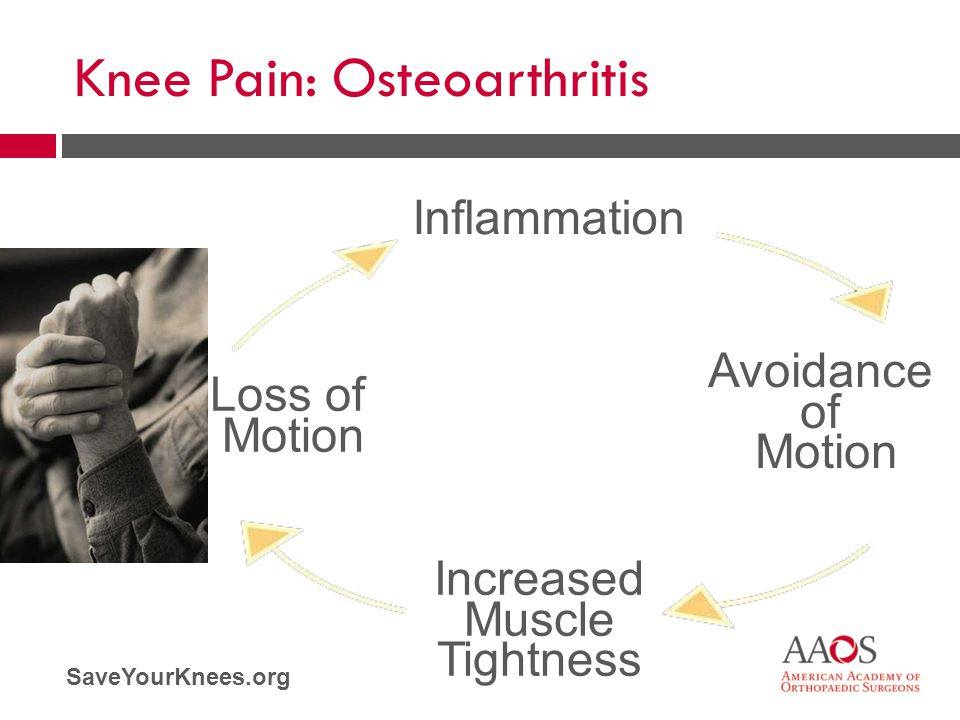 SaveYourKnees.org Inflammation Avoidance of Motion Increased Muscle Tightness Loss of Motion Knee Pain: Osteoarthritis