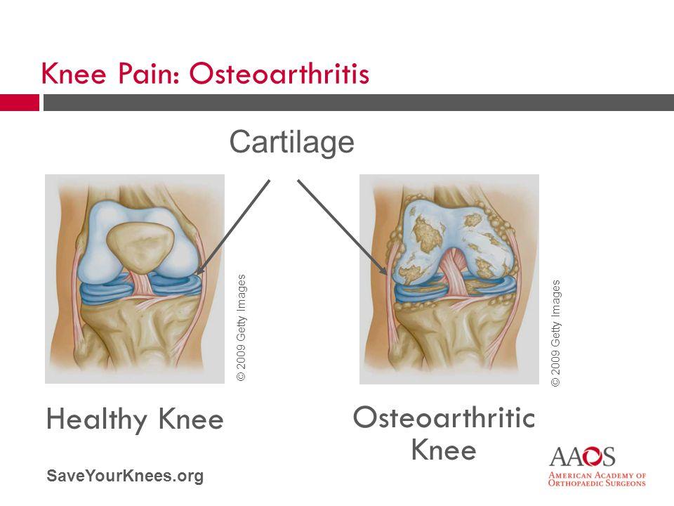 SaveYourKnees.org Healthy Knee Osteoarthritic Knee Cartilage Knee Pain: Osteoarthritis © 2009 Getty Images