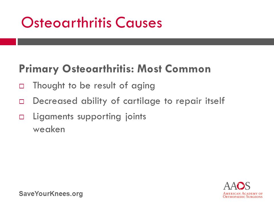 SaveYourKnees.org Osteoarthritis Causes Primary Osteoarthritis: Most Common  Thought to be result of aging  Decreased ability of cartilage to repair