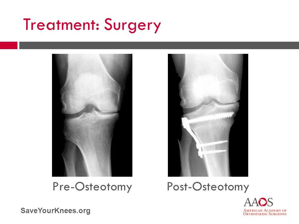 SaveYourKnees.org Treatment: Surgery Pre-OsteotomyPost-Osteotomy