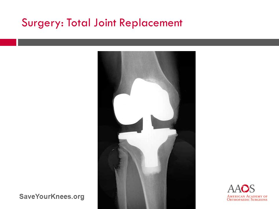 SaveYourKnees.org Surgery: Total Joint Replacement