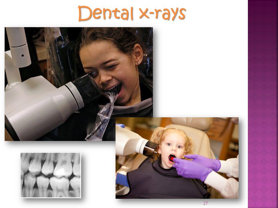 Dental x-rays 27